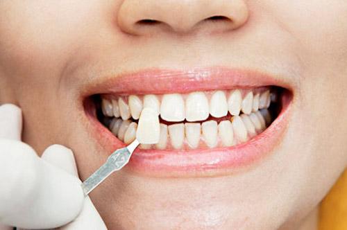 Lumineers treatment in Hellenic Dental clinic Dubai