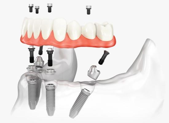dental implants dubai
